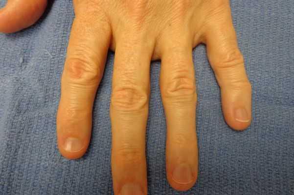 almofadas de dedos causam sintomas e tratamento
