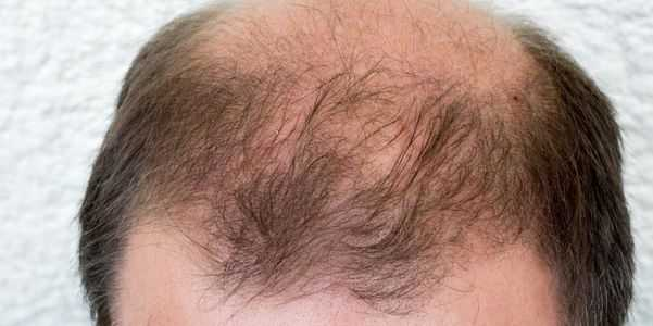 alopecia androgenética masculina padrão e feminino padrão