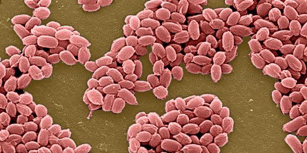 antraz bacilo anthracis infecção humana