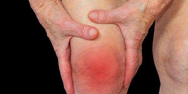 articulações inchadas provoca inchaço das articulações