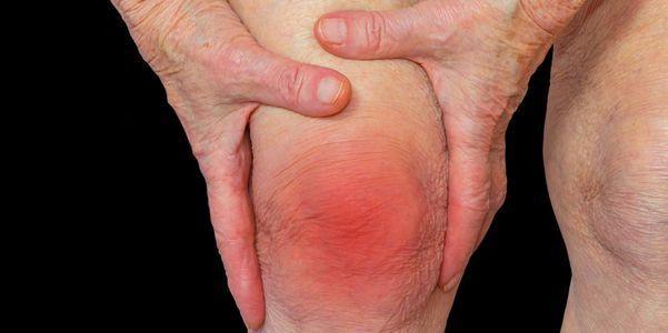 artrite do joelho inflamada tipos de dor articular provoca sintomas tratamento