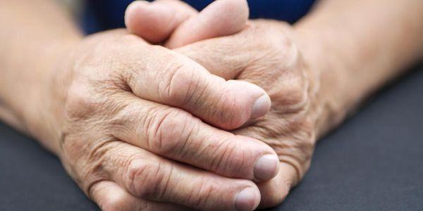 artrite reumatóide artrite articular nódulos e deformidades