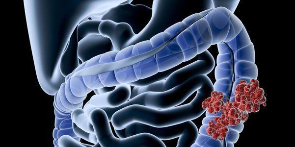 câncer colorretal digita sintomas por localização e disseminação