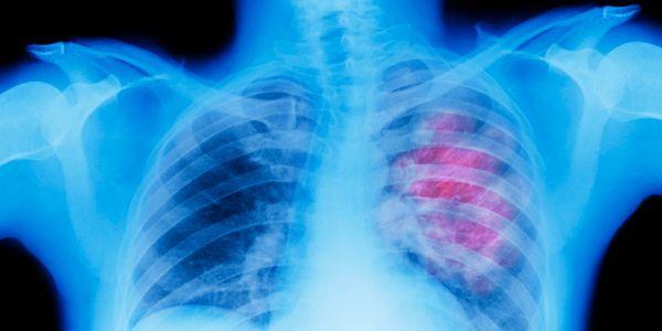 câncer linfonodal