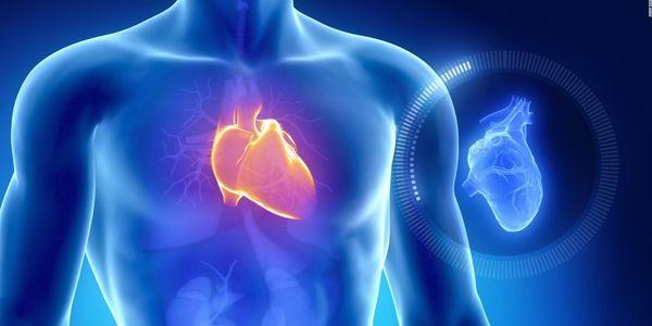 calcificação da artéria coronária