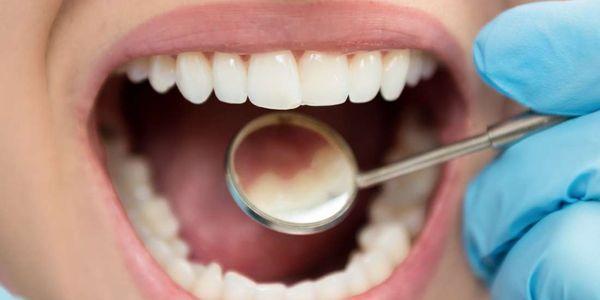 causas de pigmentação oral de descoloração dentro da boca