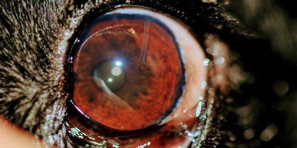 cirurgia de filtragem a laser de glaucoma e dispositivos de derivação aquosa