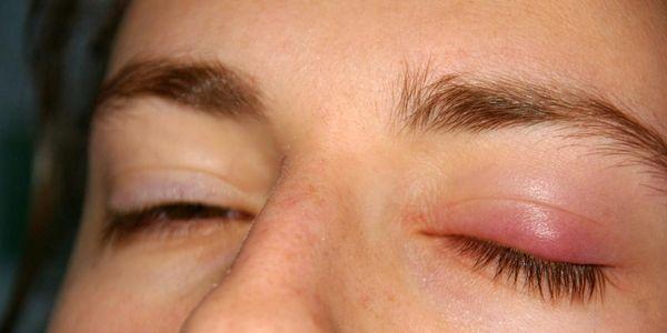 cisto palpebral calázio provoca tratamento dos sintomas