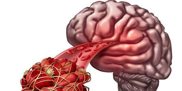 coágulo sanguíneo no cérebro bloqueado artéria e falta de oxigênio