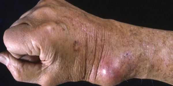 coccidioidomicose febre do vale infecção pulmonar fúngica