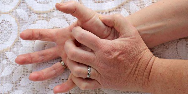 coceira e erupção entre os dedos provoca tratamentos
