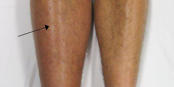 como evitar coágulos nas veias da perna dvt quando viajar