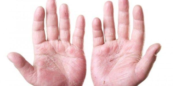 como evitar dishpan mãos dermatite eczema