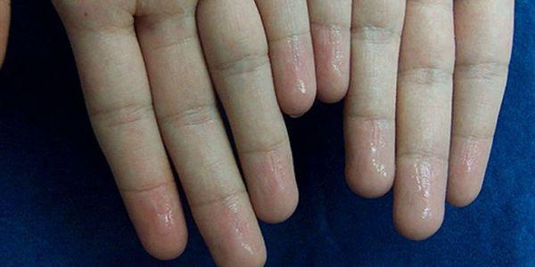 como parar a transpiração nas palmas das mãos