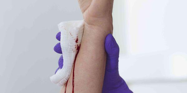 como parar o sangramento de cortes e feridas