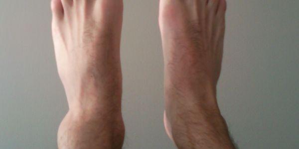 como proteger e fortalecer os tornozelos fracos