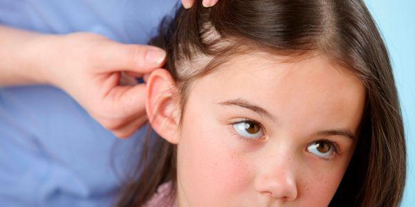 como se livrar dos piolhos do cabelo do corpo e da cabeça