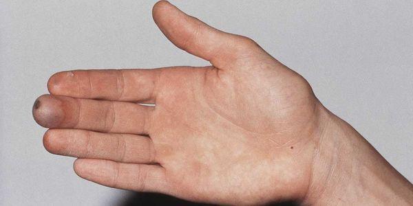 congelamento congelamento lesão provoca sintomas tratamento