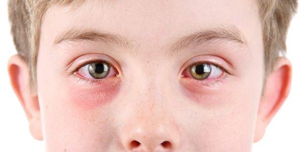 conjuntivite rosa olho causas sintomas fotos tratamento