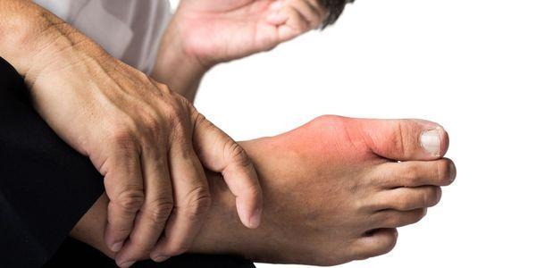 cristais de ácido úrico em articulações e ataques de artrite gotosa