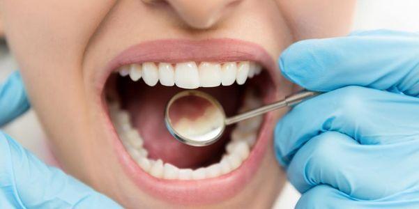 dente lascado e dentes quebrados prevenção de tratamento em casa