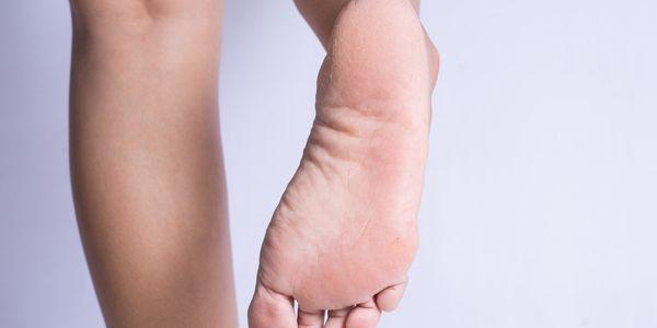 descascando imagens e causas dos problemas de pele