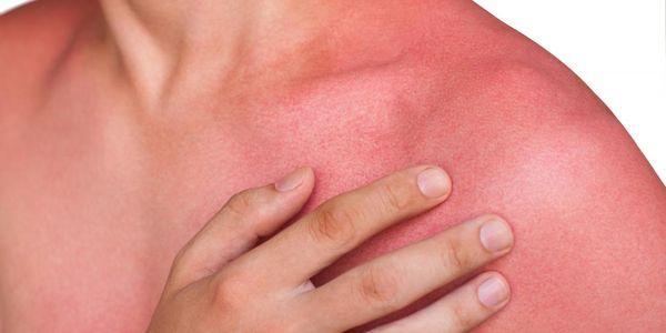 descoloração da pele provoca imagens de cores da pele anormais