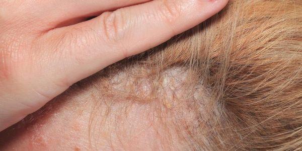 dicas de tratamento para a caspa do couro cabeludo de diferentes causas