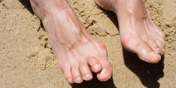 dicas para alívio da dor no tornozelo e remédios