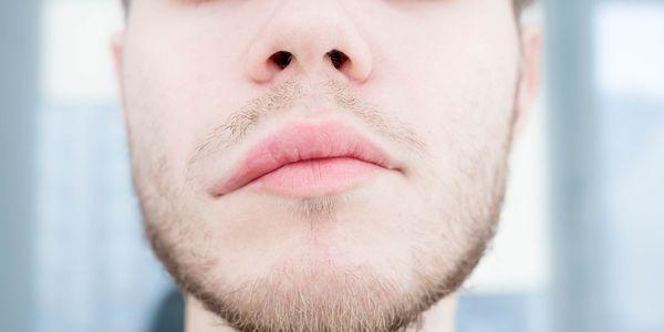 disartria distorcida tipos de fala arrastada provoca sintomas