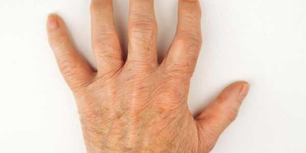 dor de junta na mão ossos e articulações causas e tratamento