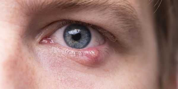 dor nos olhos causa outros sintomas e remédios