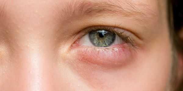 dor nos olhos e alça ocular dolorosa causa quadros outros sintomas
