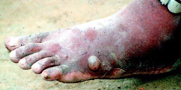 dracunculose, doença, verme guiné
