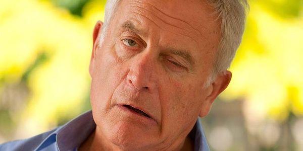 droop facial provoca uma face flácida