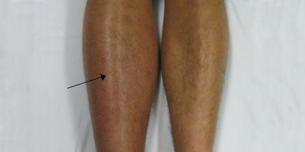 dvt e pe pernas para os pulmões, que significa causas e sintomas