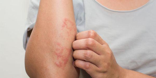 eczema o que parece com diferentes tipos de eczema