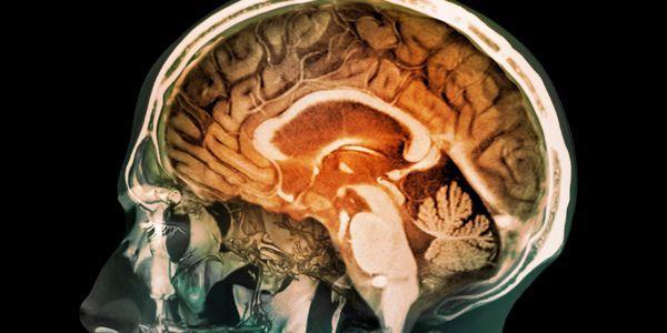 encefalite viral infecção cerebral informação sobre a doença do vírus