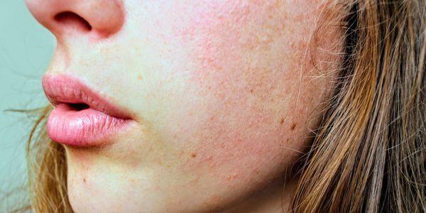 erupção cutânea da dermatite perioral ao redor da boca
