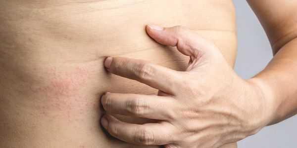 erupção cutânea no estômago causas de erupções cutâneas abdominais