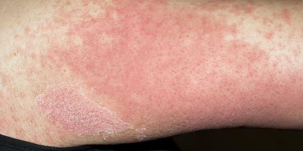 erupção da mama provoca fotos e sintomas