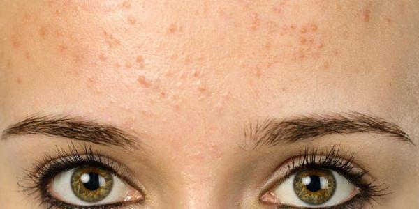 espinhas na testa causa tratamento de fotos