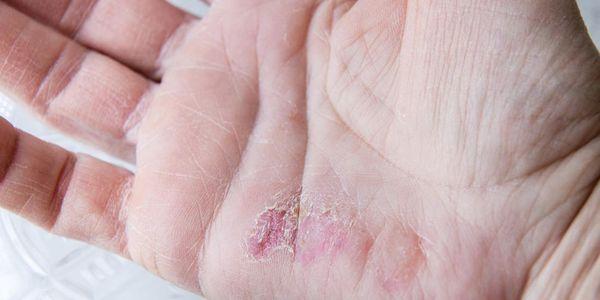 espinhas nos dedos provoca doenças fotos tratamento
