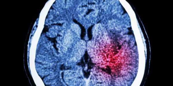exames suspeitos de diagnóstico de AVC varreduras e avaliação