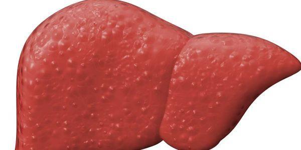 fasciolíase, doença do verme do fígado, tratamento de sintomas da doença
