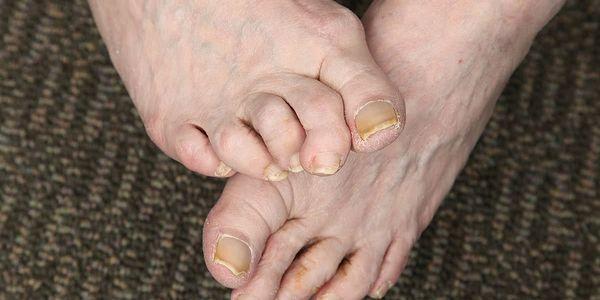 garra de martelo e dedo do pé do martelo dedos anormalmente dobrados