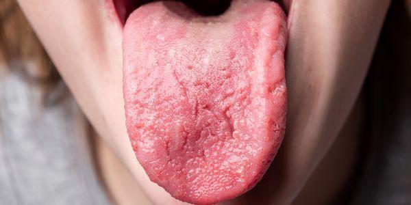 gosto salgado na boca como sintoma e lista de causas