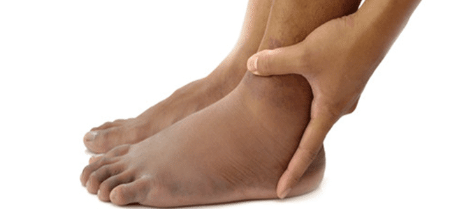 gravidez perna inchaço causas de pernas inchadas tornozelos pés