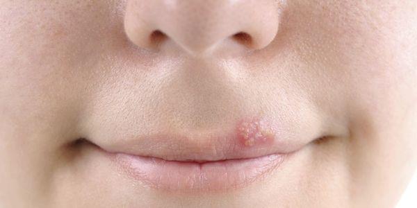 herpes oral frio feridas febre bolhas tratamento e prevenção