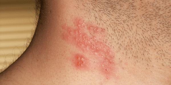 herpes zoster vírus infecção shingles fatos fotos e vacina
